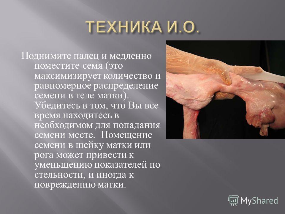 Поднимите палец и медленно поместите семя ( это максимизирует количество и равномерное распределение семени в теле матки ). Убедитесь в том, что Вы все время находитесь в необходимом для попадания семени месте. Помещение семени в шейку матки или рога