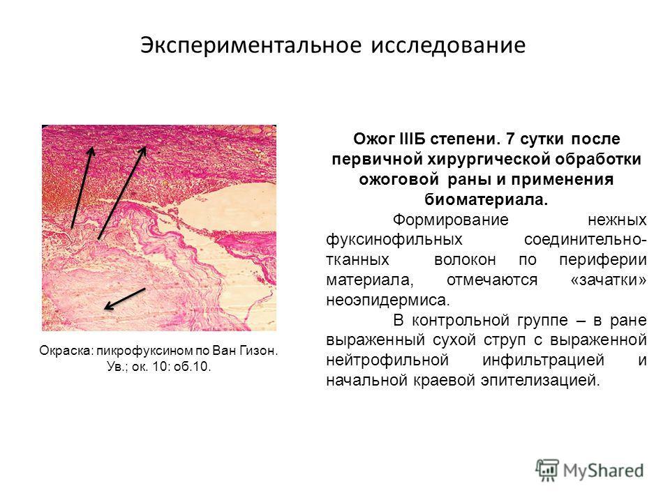 Экспериментальное исследование Ожог IIIБ степени. 7 сутки после первичной хирургической обработки ожоговой раны и применения биоматериала. Формирование нежных фуксинофильных cоединительно- тканных волокон по периферии материала, отмечаются «зачатки»