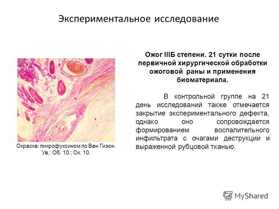Экспериментальное исследование Ожог IIIБ степени. 21 сутки после первичной хирургической обработки ожоговой раны и применения биоматериала. В контрольной группе на 21 день исследований также отмечается закрытие экспериментального дефекта, однако оно