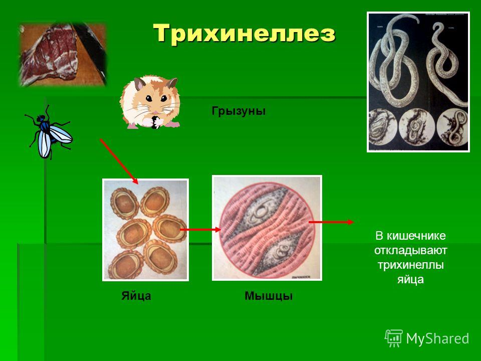 Трихинеллез В кишечнике откладывают трихинеллы яйца Мышцы Грызуны Яйца