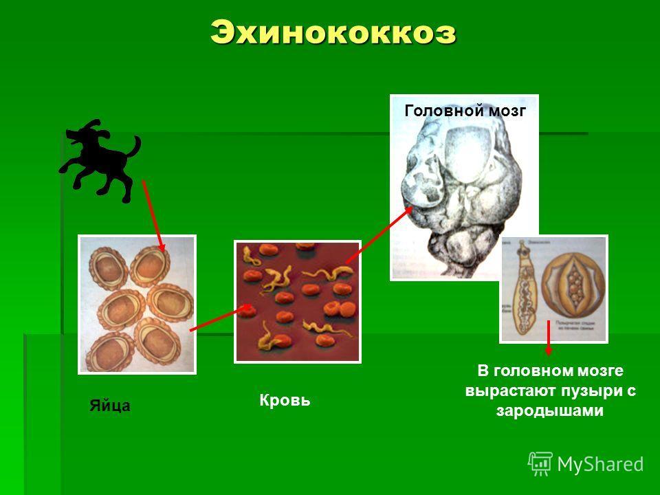 Эхинококкоз Головной мозг В головном мозге вырастают пузыри с зародышами Кровь