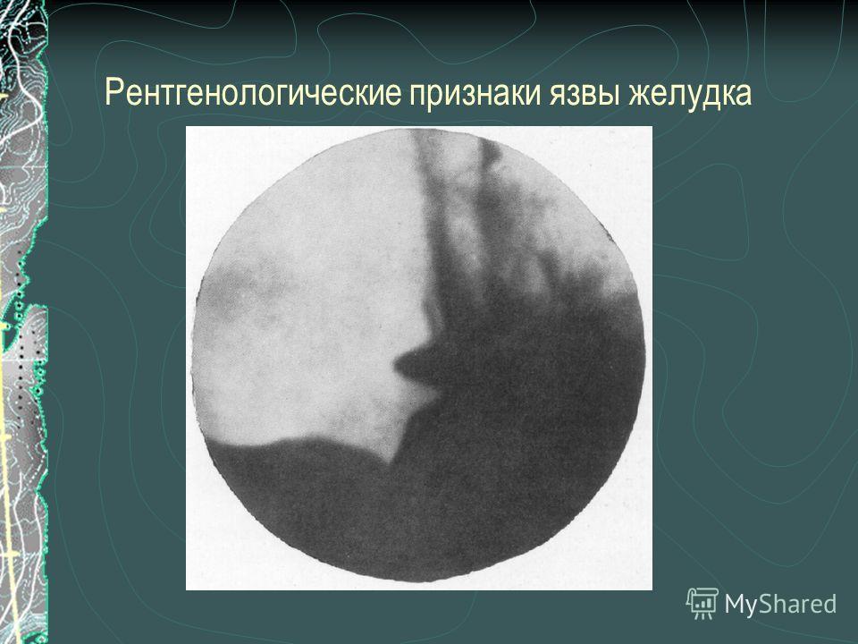 Рентгенологические признаки язвы желудка