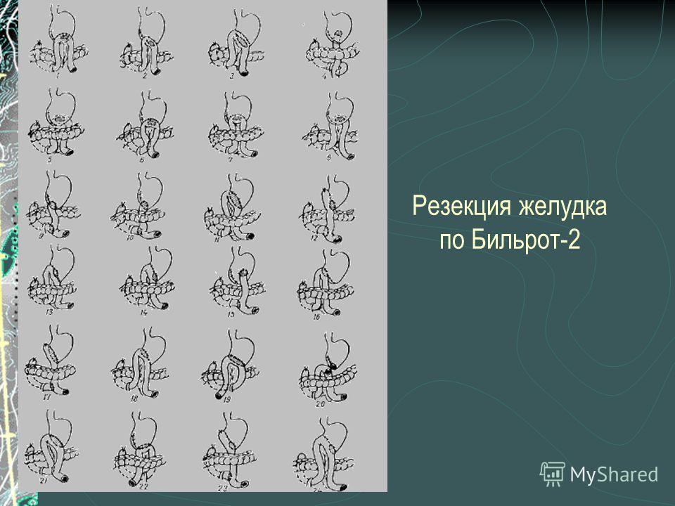 Резекция желудка по Бильрот-2