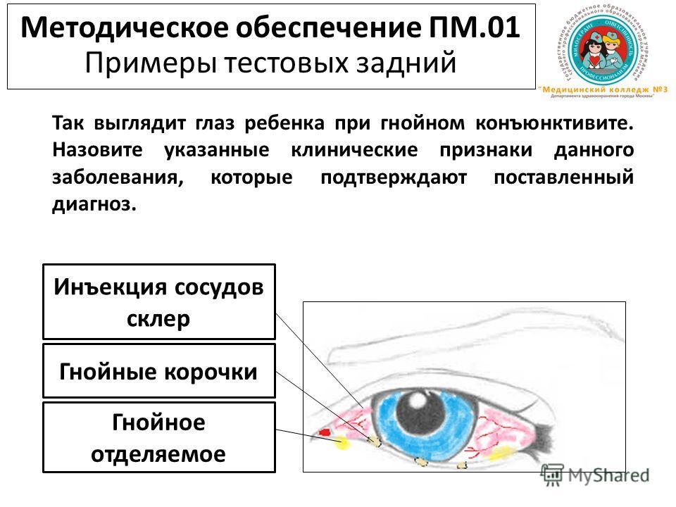 Инъекция сосудов склер Гнойные корочки Гнойное отделяемое Методическое обеспечение ПМ.01 Примеры тестовых задний Так выглядит глаз ребенка при гнойном конъюнктивите. Назовите указанные клинические признаки данного заболевания, которые подтверждают по