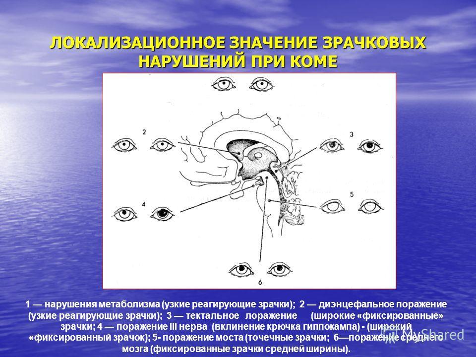 ЛОКАЛИЗАЦИОННОЕ ЗНАЧЕНИЕ ЗРАЧКОВЫХ НАРУШЕНИЙ ПРИ КОМЕ 1 нарушения метаболизма (узкие реагирующие зрачки); 2 диэнцефальное поражение (узкие реагирующие зрачки); 3 тектальное лоражение (широкие «фиксированные» зрачки; 4 поражение III нерва (вклинение к