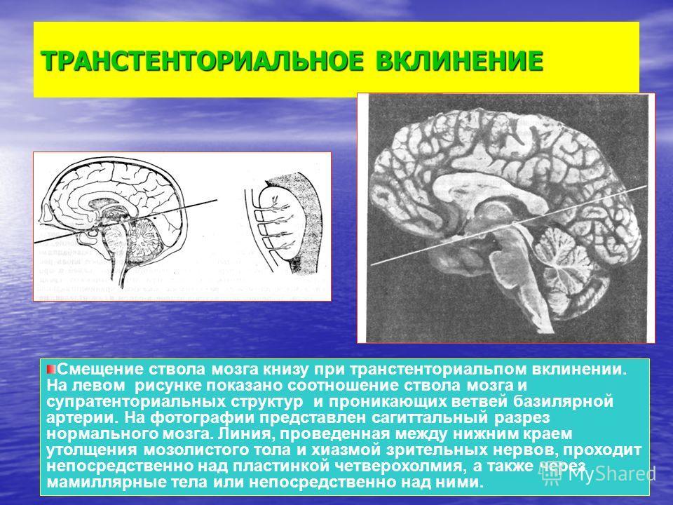 ТРАНСТЕНТОРИАЛЬНОЕ ВКЛИНЕНИЕ Смещение ствола мозга книзу при транстенториальпом вклинении. На левом рисунке показано соотношение ствола мозга и супратенториальных структур и проникающих ветвей базилярной артерии. На фотографии представлен сагиттальны