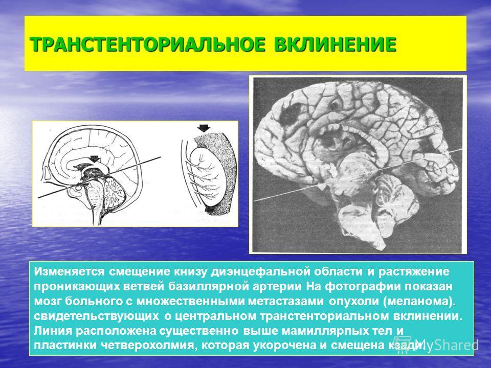ТРАНСТЕНТОРИАЛЬНОЕ ВКЛИНЕНИЕ Изменяется смещение книзу диэнцефальной области и растяжение проникающих ветвей базиллярной артерии На фотографии показан мозг больного с множественными метастазами опухоли (меланома). свидетельствующих о центральном тран
