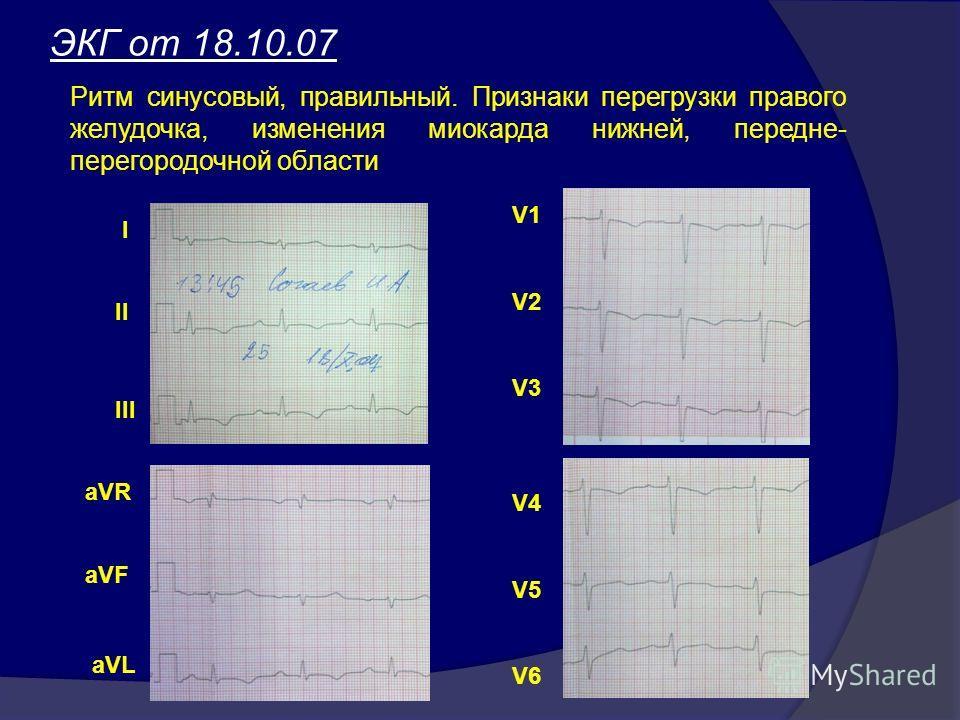ЭКГ от 18.10.07 Ритм синусовый, правильный. Признаки перегрузки правого желудочка, изменения миокарда нижней, передне- перегородочной области I II III aVR aVF aVL V1 V2 V3 V4 V5 V6
