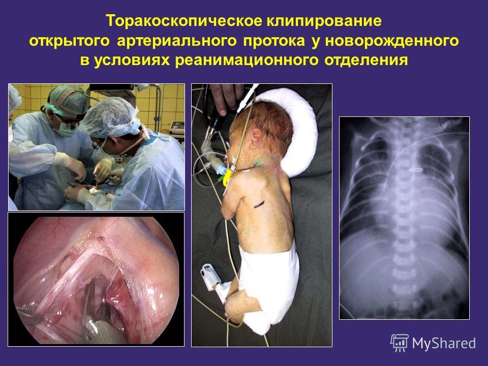 Торакоскопическое клипирование открытого артериального протока у новорожденного в условиях реанимационного отделения