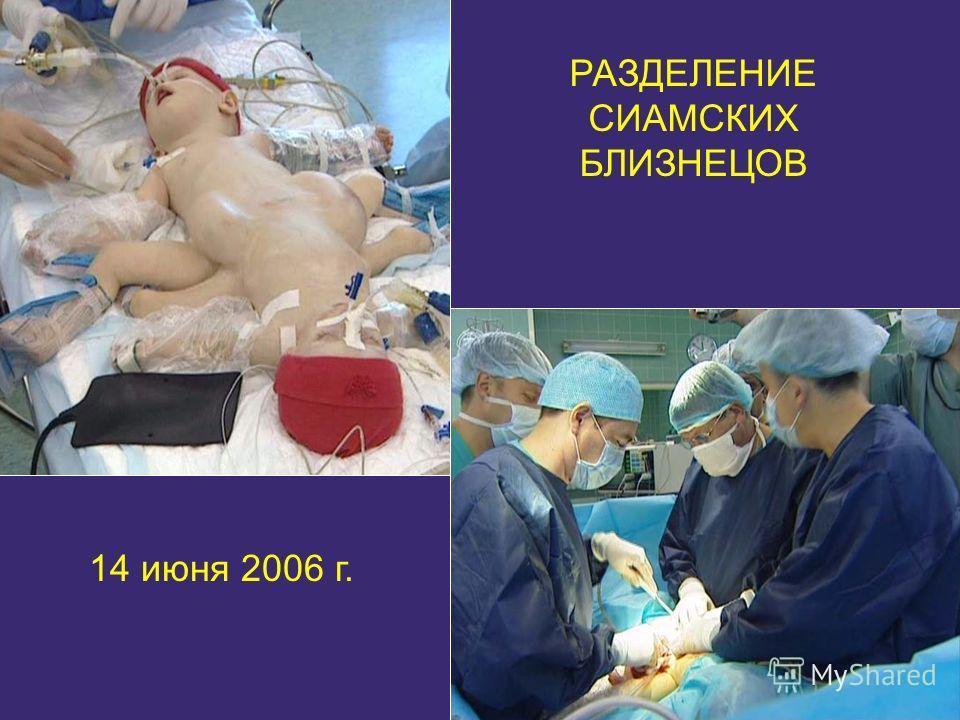 РАЗДЕЛЕНИЕ СИАМСКИХ БЛИЗНЕЦОВ 14 июня 2006 г.