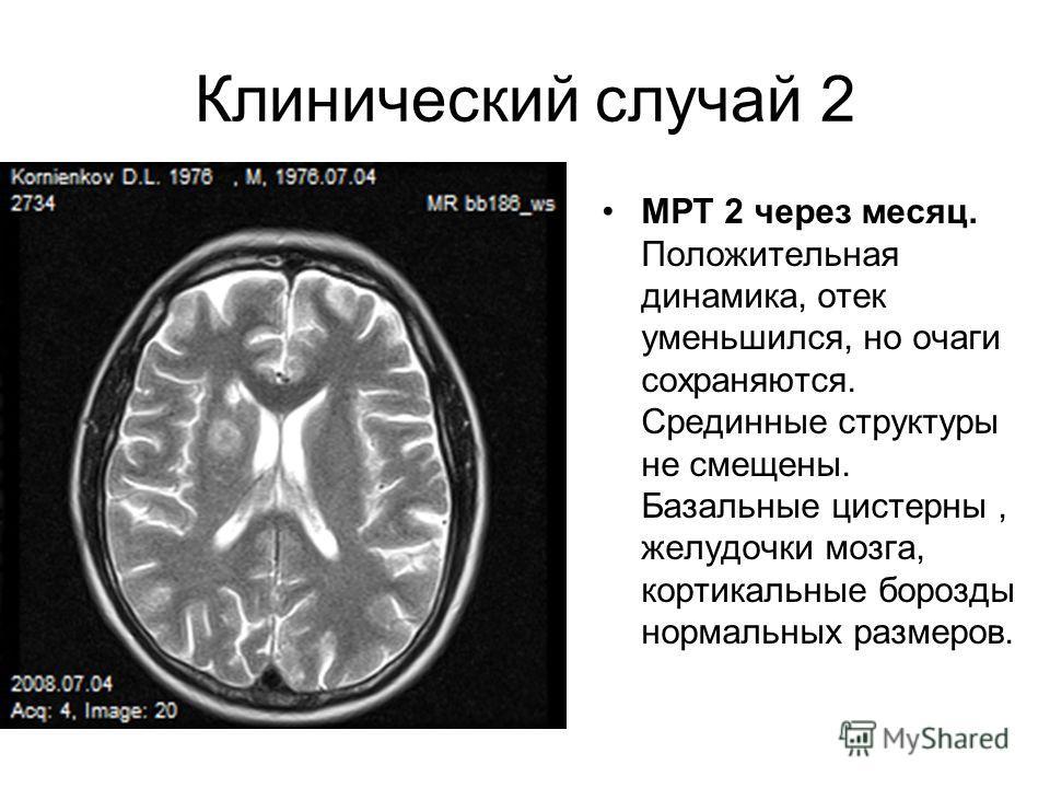 Клинический случай 2 МРТ 2 через месяц. Положительная динамика, отек уменьшился, но очаги сохраняются. Срединные структуры не смещены. Базальные цистерны, желудочки мозга, кортикальные борозды нормальных размеров.