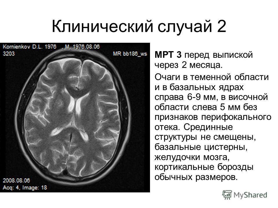 Клинический случай 2 МРТ 3 перед выпиской через 2 месяца. Очаги в теменной области и в базальных ядрах справа 6-9 мм, в височной области слева 5 мм без признаков перифокального отека. Срединные структуры не смещены, базальные цистерны, желудочки мозг