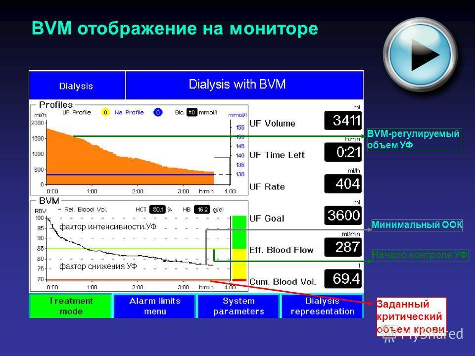 BVM отображение на мониторе BVM-регулируемый объем УФ Начало контроля УФ Заданный критический объем крови Минимальный ООК фактор интенсивности УФ фактор снижения УФ