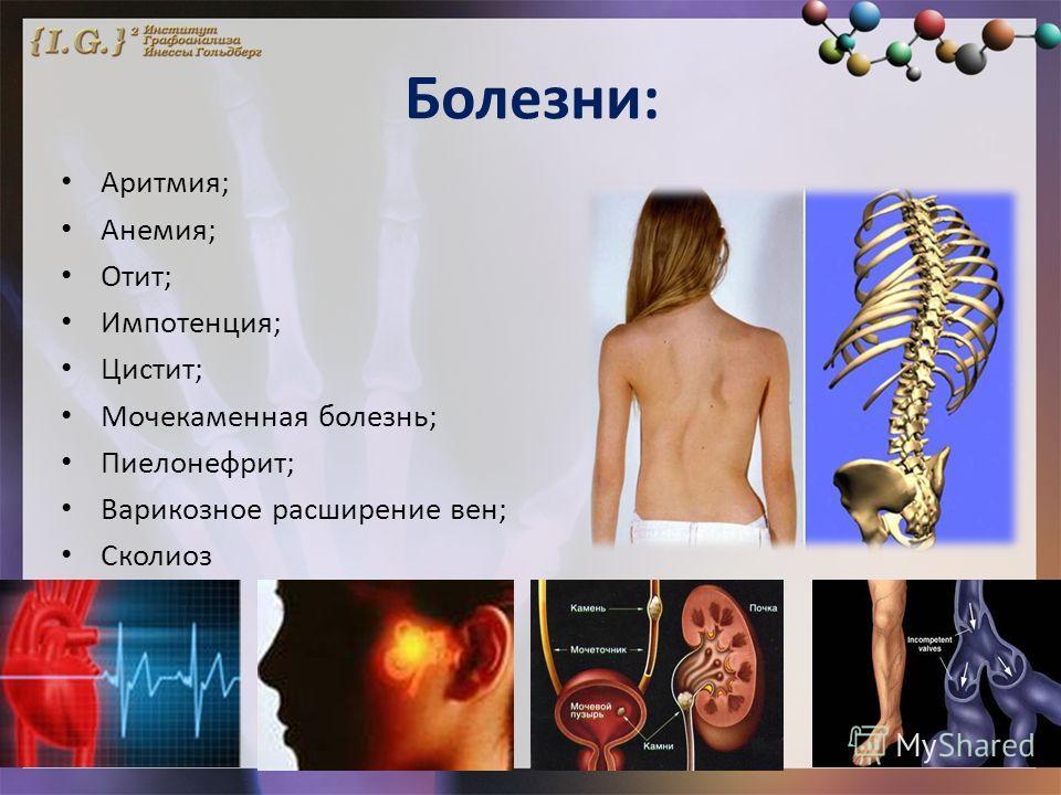 Болезни: Аритмия; Анемия; Отит; Импотенция; Цистит; Мочекаменная болезнь; Пиелонефрит; Варикозное расширение вен; Сколиоз