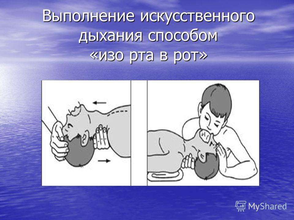 Выполнение искусственного дыхания способом «изо рта в рот»