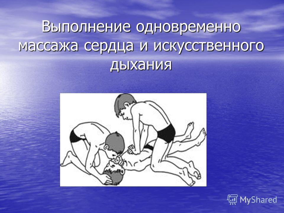 Выполнение одновременно массажа сердца и искусственного дыхания