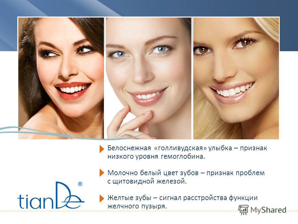 Белоснежная «голливудская» улыбка – признак низкого уровня гемоглобина. Молочно белый цвет зубов – признак проблем с щитовидной железой. Желтые зубы – сигнал расстройства функции желчного пузыря.