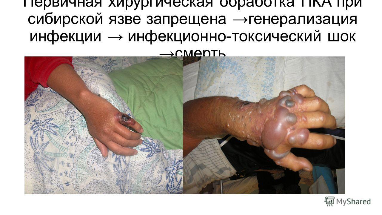 Первичная хирургическая обработка ПКА при сибирской язве запрещена генерализация инфекции инфекционно-токсический шок смерть