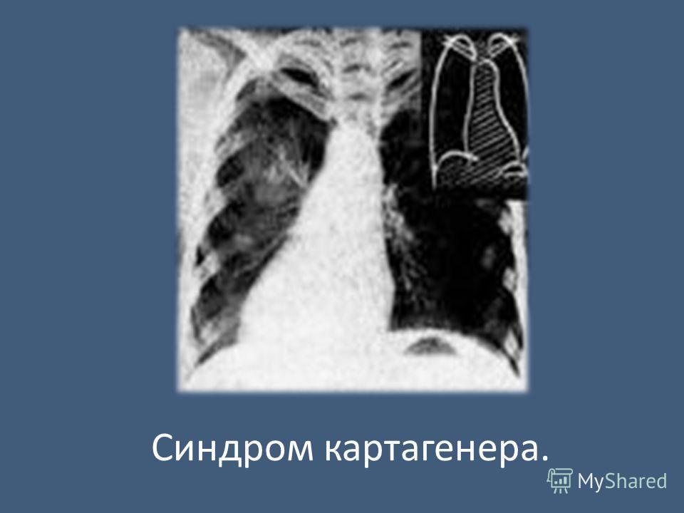 Синдром картагенера.