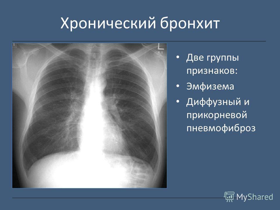 Хронический бронхит Две группы признаков: Эмфизема Диффузный и прикорневой пневмофиброз