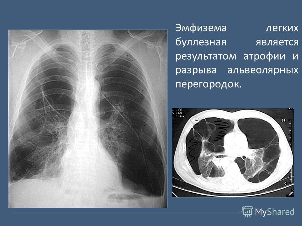 Эмфизема легких буллезная является результатом атрофии и разрыва альвеолярных перегородок.