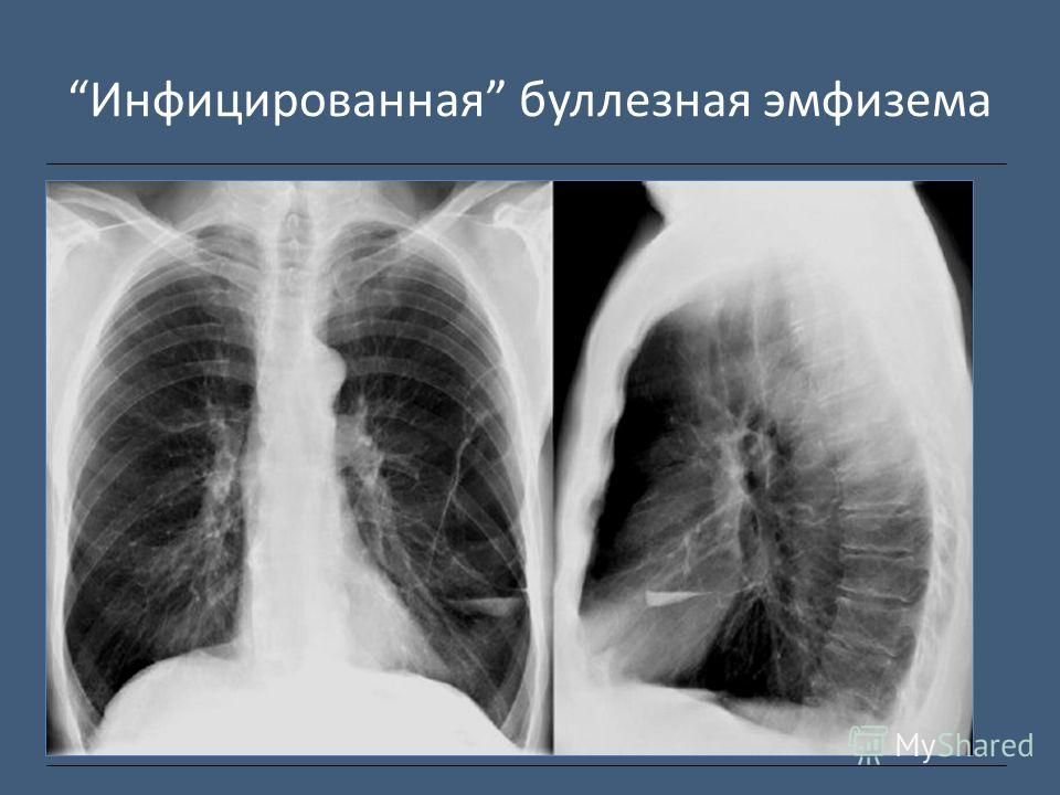 Инфицированная буллезная эмфизема