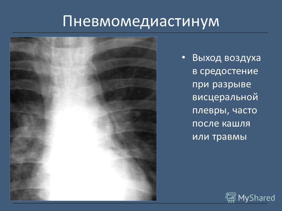 Пневмомедиастинум Выход воздуха в средостение при разрыве висцеральной плевры, часто после кашля или травмы
