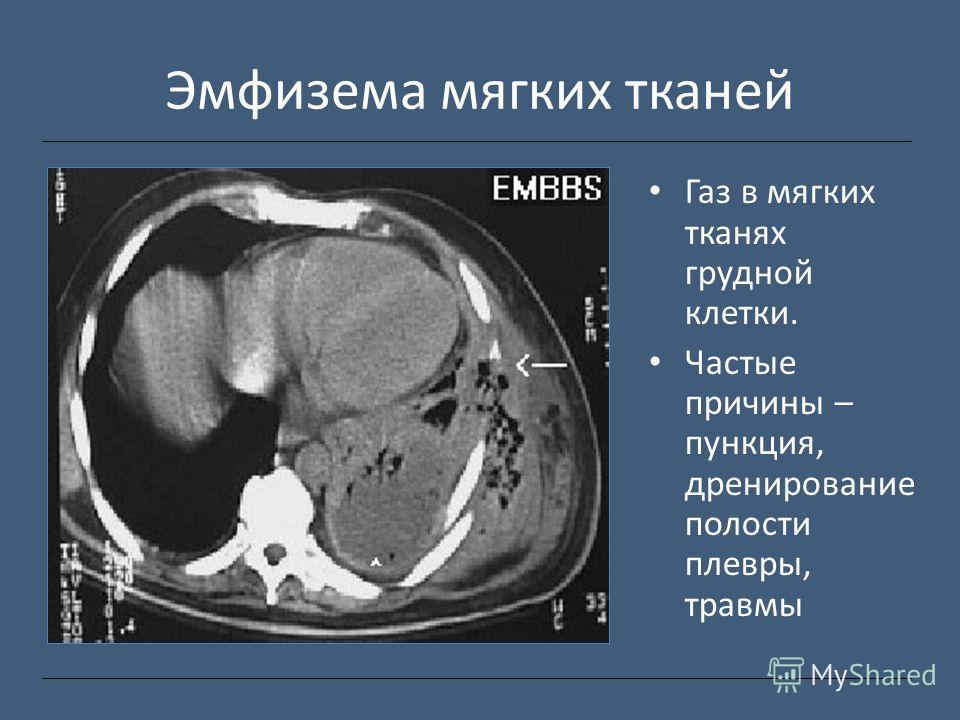 Эмфизема мягких тканей Газ в мягких тканях грудной клетки. Частые причины – пункция, дренирование полости плевры, травмы