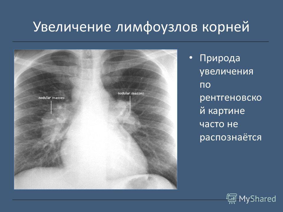Увеличение лимфоузлов корней Природа увеличения по рентгеновско й картине часто не распознаётся