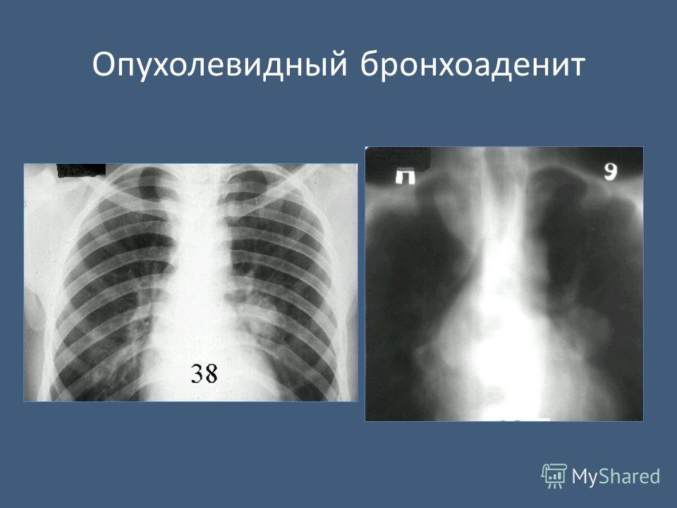 Опухолевидный бронхоаденит