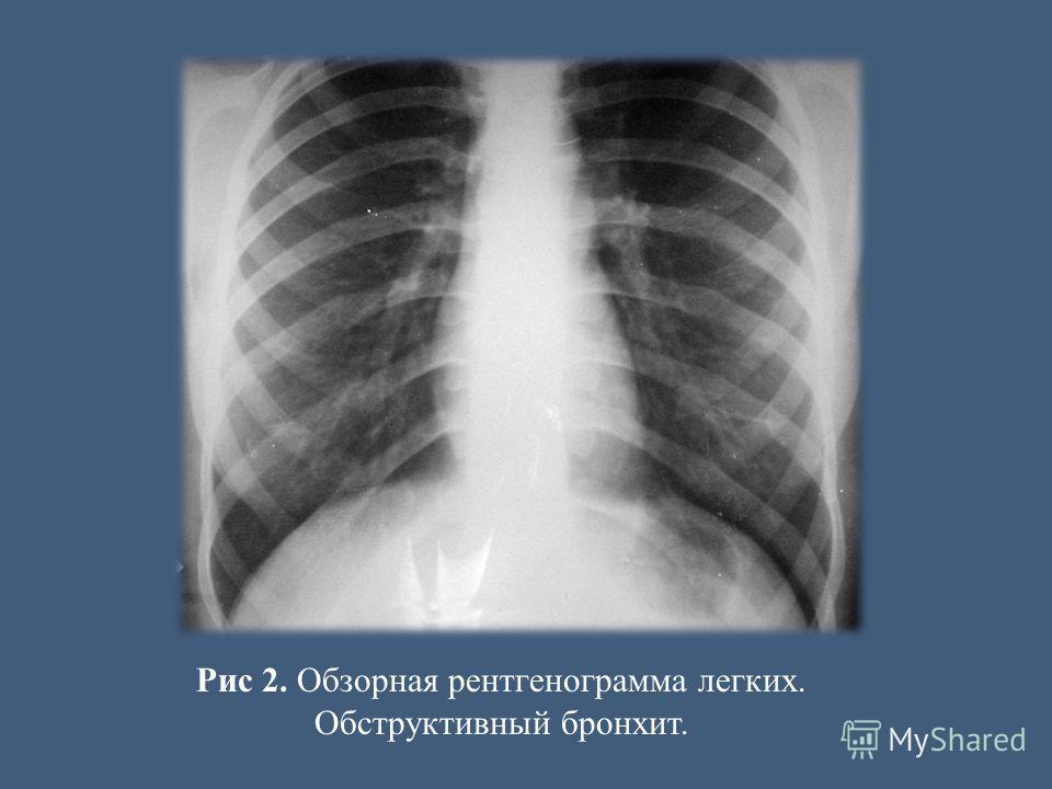 Рис 2. Обзорная рентгенограмма легких. Обструктивный бронхит.