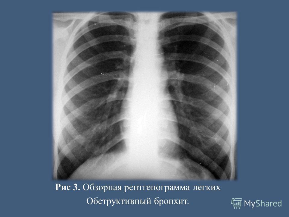 Рис 3. Обзорная рентгенограмма легких Обструктивный бронхит.