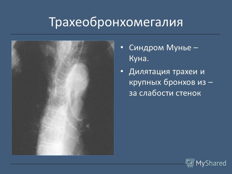 Трахеобронхомегалия Синдром Мунье – Куна. Дилятация трахеи и крупных бронхов из – за слабости стенок