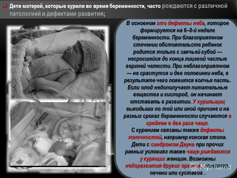 Дети матерей, которые курили во время беременности, часто рождаются с различной патологией и дефектами развития ;