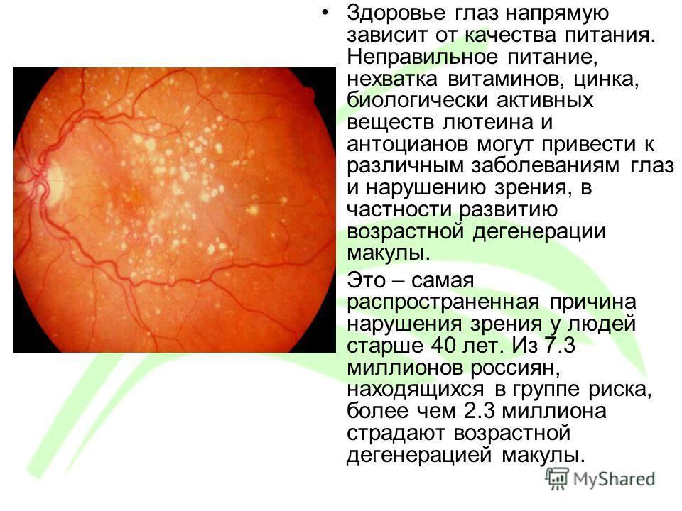 Здоровье глаз напрямую зависит от качества питания. Неправильное питание, нехватка витаминов, цинка, биологически активных веществ лютеина и антоцианов могут привести к различным заболеваниям глаз и нарушению зрения, в частности развитию возрастной д