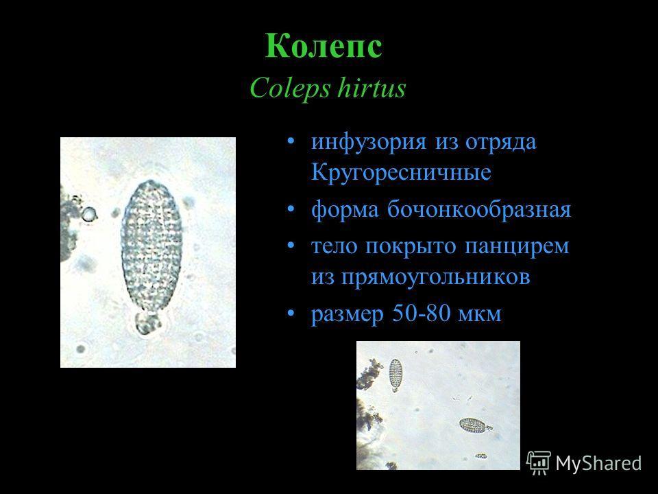 Колепс Coleps hirtus инфузория из отряда Кругоресничные форма бочонкообразная тело покрыто панцирем из прямоугольников размер 50-80 мкм