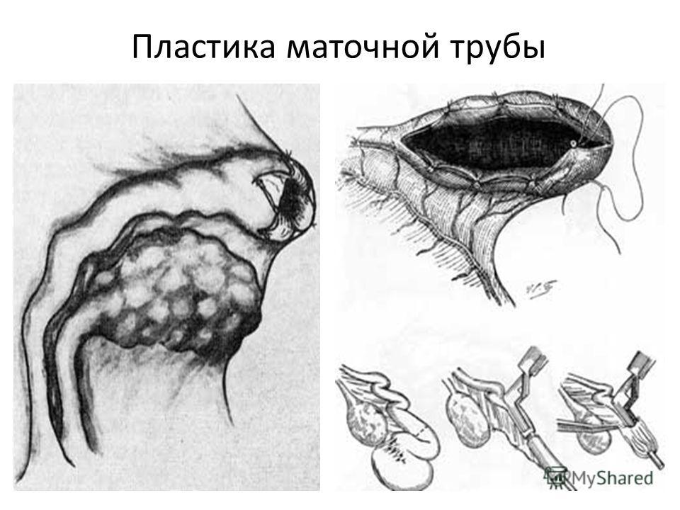 Пластика маточной трубы