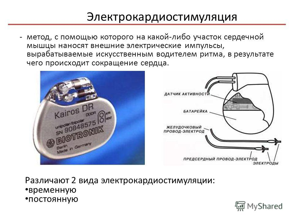 Электрокардиостимуляция - метод, с помощью которого на какой-либо участок сердечной мышцы наносят внешние электрические импульсы, вырабатываемые искусственным водителем ритма, в результате чего происходит сокращение сердца. Различают 2 вида электрока