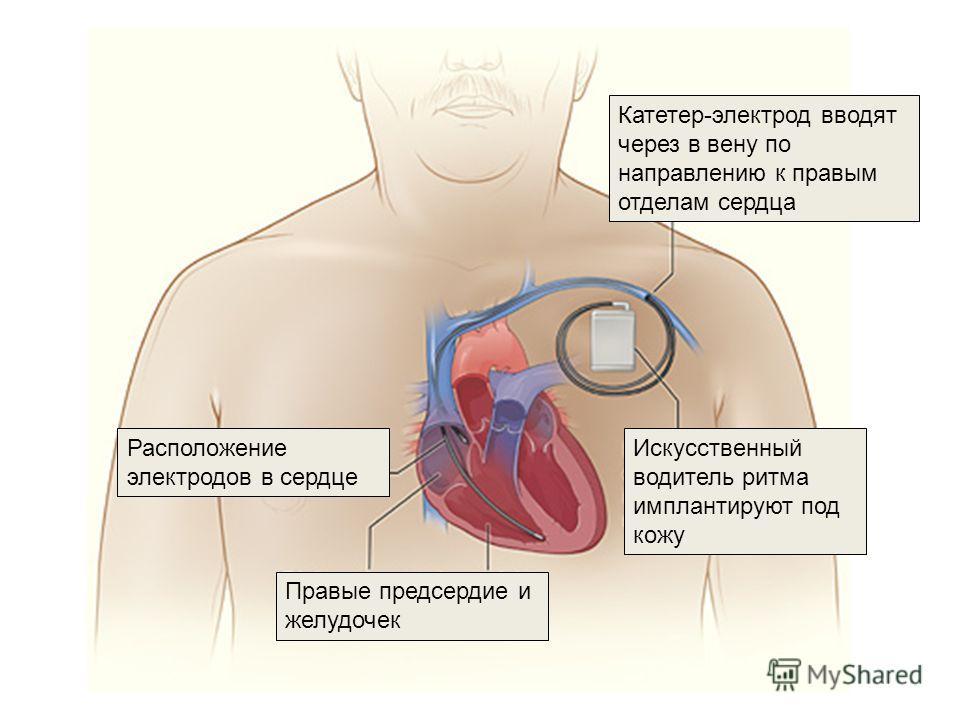 Искусственный водитель ритма имплантируют под кожу Катетер-электрод вводят через в вену по направлению к правым отделам сердца Расположение электродов в сердце Правые предсердие и желудочек