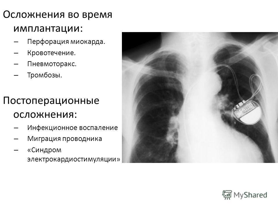 Осложнения во время имплантации: – Перфорация миокарда. – Кровотечение. – Пневмоторакс. – Тромбозы. Постоперационные осложнения: – Инфекционное воспаление – Миграция проводника – «Синдром электрокардиостимуляции»