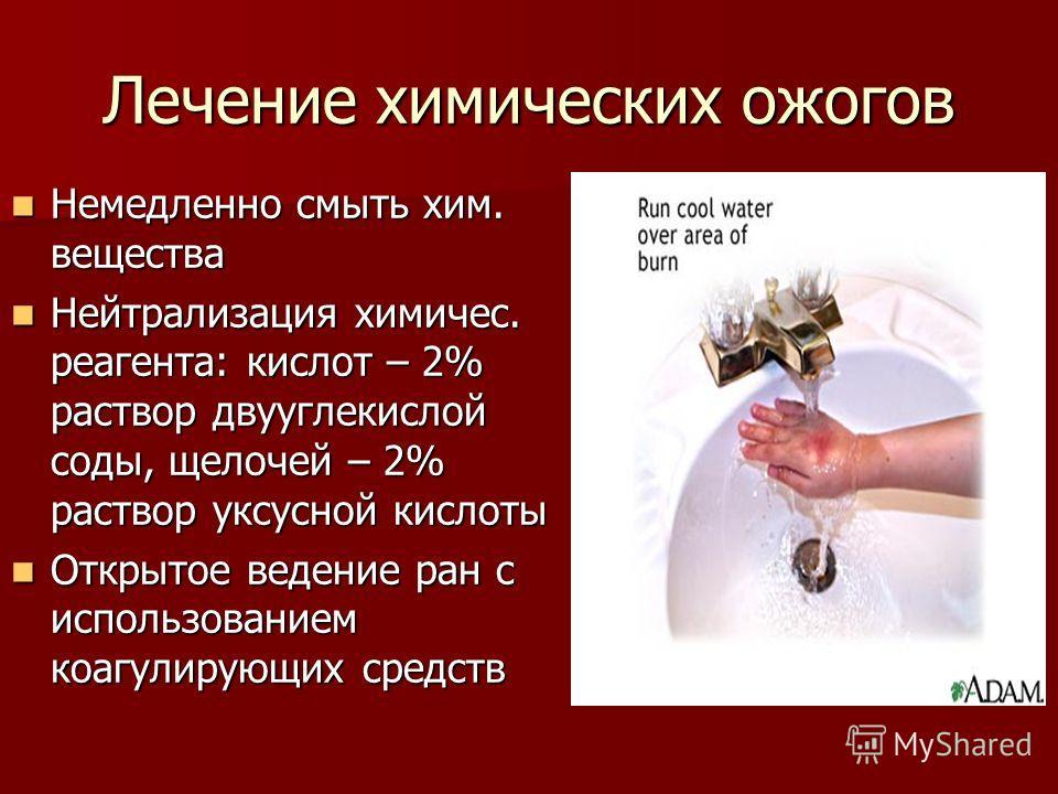 Лечение химических ожогов Немедленно смыть хим. вещества Немедленно смыть хим. вещества Нейтрализация химичес. реагента: кислот – 2% раствор двууглекислой соды, щелочей – 2% раствор уксусной кислоты Нейтрализация химичес. реагента: кислот – 2% раство