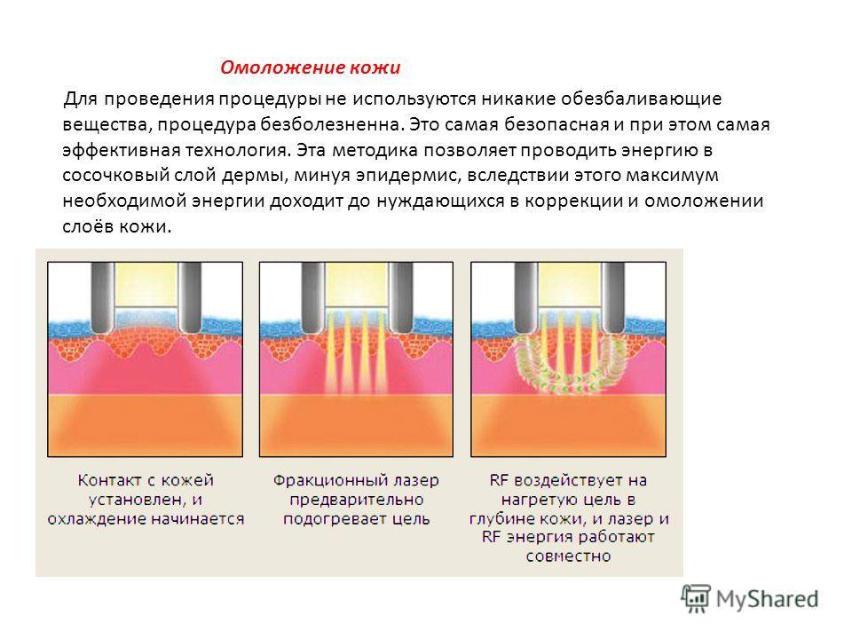 Омоложение кожи Для проведения процедуры не используются никакие обезбаливающие вещества, процедура безболезненна. Это самая безопасная и при этом самая эффективная технология. Эта методика позволяет проводить энергию в сосочковый слой дермы, минуя э