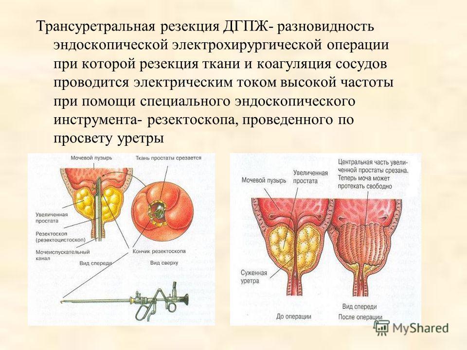 Трансуретральная резекция ДГПЖ- разновидность эндоскопической электрохирургической операции при которой резекция ткани и коагуляция сосудов проводится электрическим током высокой частоты при помощи специального эндоскопического инструмента- резектоск