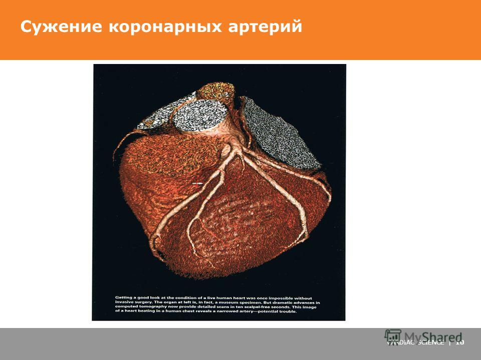 CARDIAC SCIENCE | 10 Сужение коронарных артерий