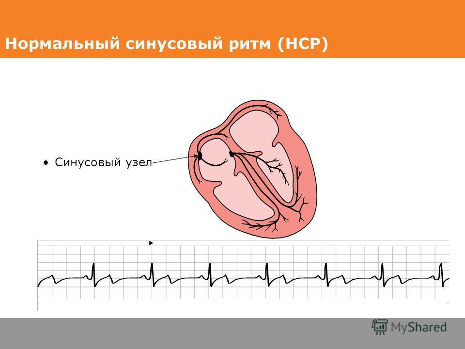 Синусовый узел HR 74 Нормальный синусовый ритм (НСР)