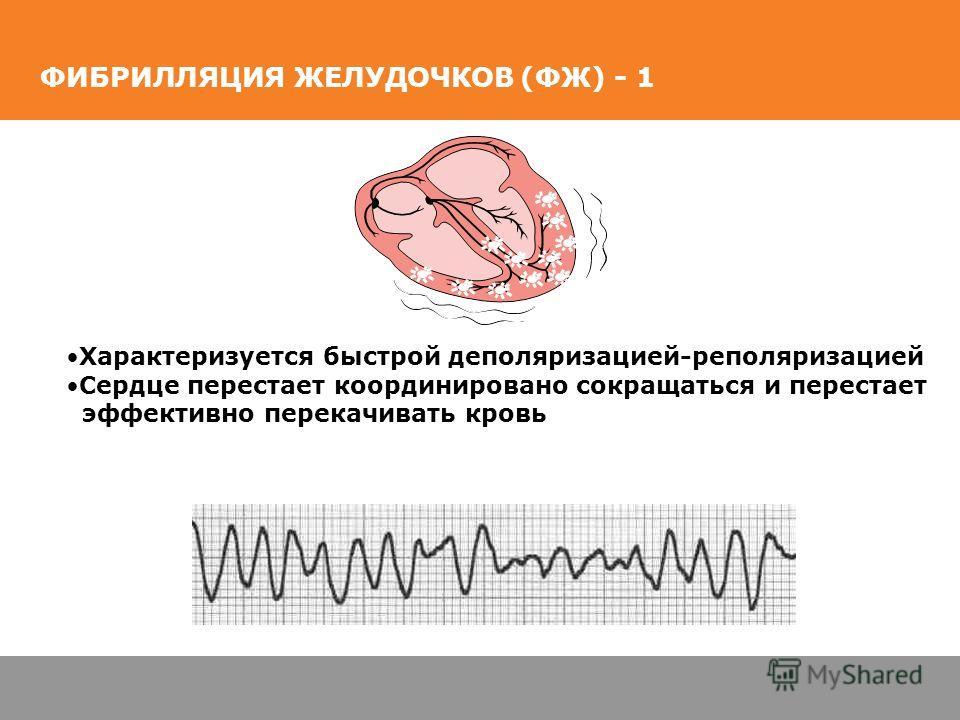 ФИБРИЛЛЯЦИЯ ЖЕЛУДОЧКОВ (ФЖ) - 1 Характеризуется быстрой деполяризацией-реполяризацией Сердце перестает координировано сокращаться и перестает эффективно перекачивать кровь