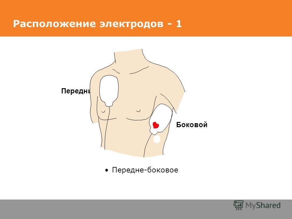 Расположение электродов - 1 Передне-боковое Боковой Передний