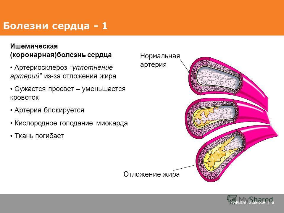 CARDIAC SCIENCE | 6 Ишемическая (коронарная)болезнь сердца Артериосклероз уплотнение артерий из-за отложения жира Сужается просвет – уменьшается кровоток Артерия блокируется Кислородное голодание миокарда Ткань погибает Нормальная артерия Отложение ж