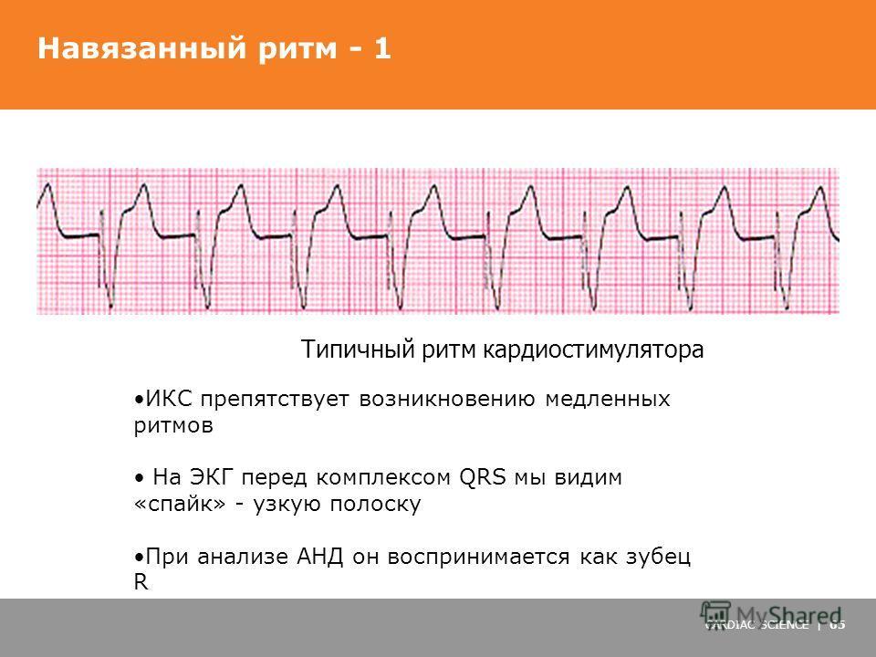 CARDIAC SCIENCE | 65 Навязанный ритм - 1 Типичный ритм кардиостимулятора ИКС препятствует возникновению медленных ритмов На ЭКГ перед комплексом QRS мы видим «спайк» - узкую полоску При анализе АНД он воспринимается как зубец R
