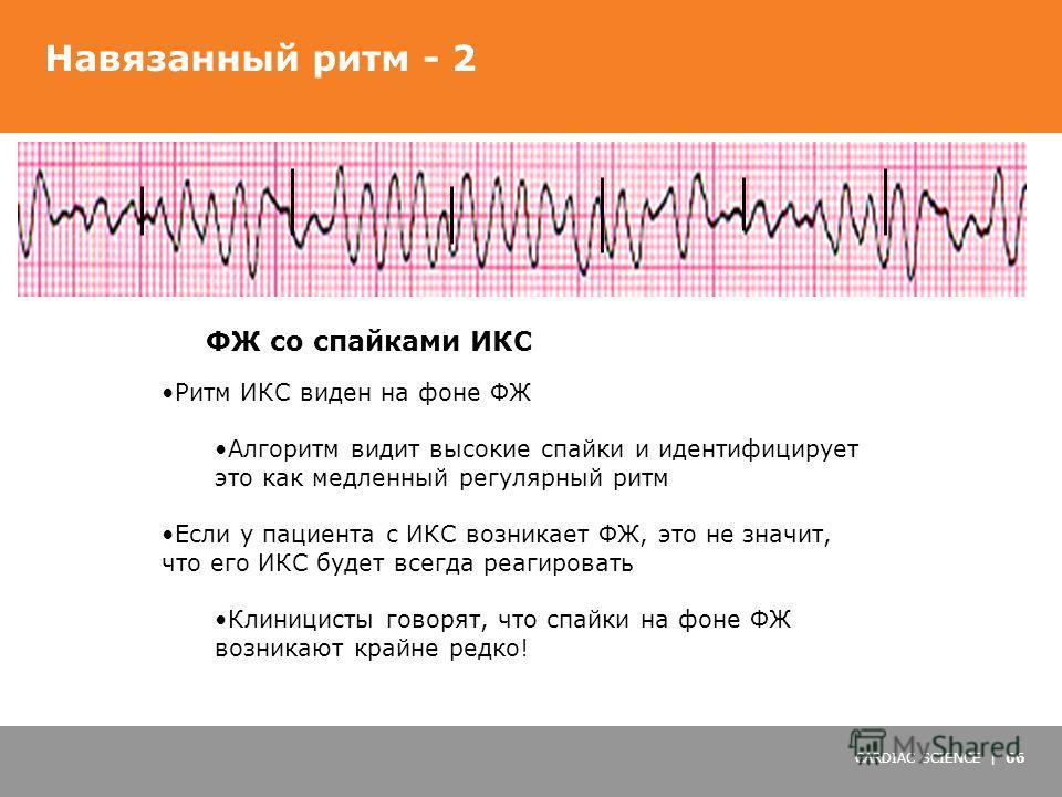 CARDIAC SCIENCE | 66 ФЖ со спайками ИКС Ритм ИКС виден на фоне ФЖ Алгоритм видит высокие спайки и идентифицирует это как медленный регулярный ритм Если у пациента с ИКС возникает ФЖ, это не значит, что его ИКС будет всегда реагировать Клиницисты гово